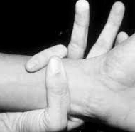 príznak zápästia